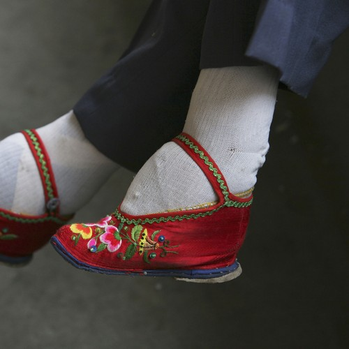 The Medical Consequences Of Foot Binding The Atlantic