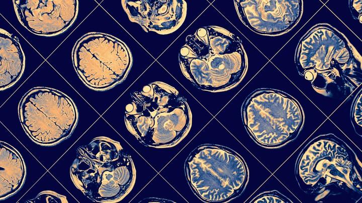 MRI of brains