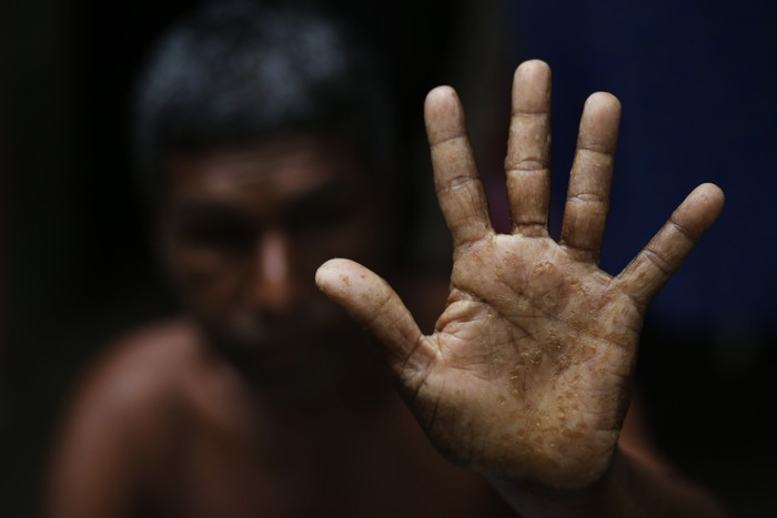 A man displays his hands with spots from arsenic poisoning.