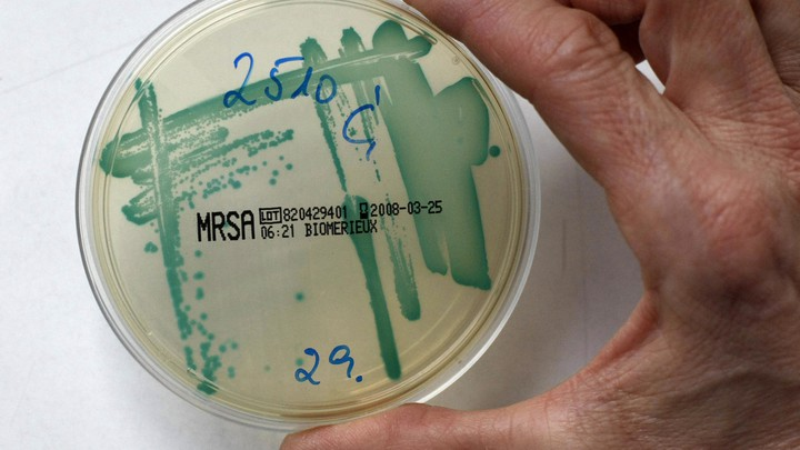 "A petri dish labeled ""MRSA"""