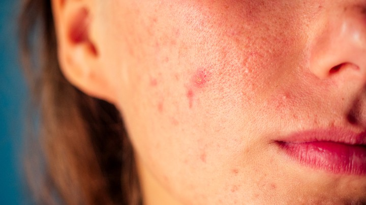 A close-up of a woman's face with acne