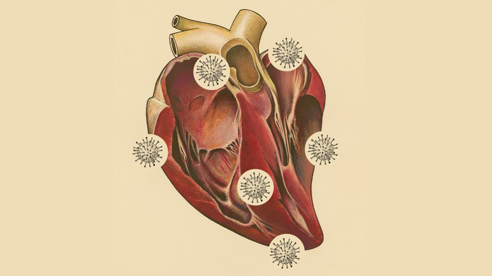 A drawing of a human heart with coronaviruses surrounding it