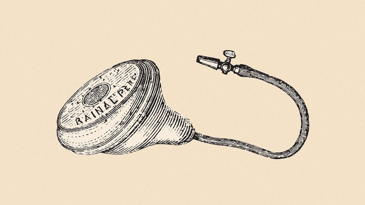 An illustration of a pessary