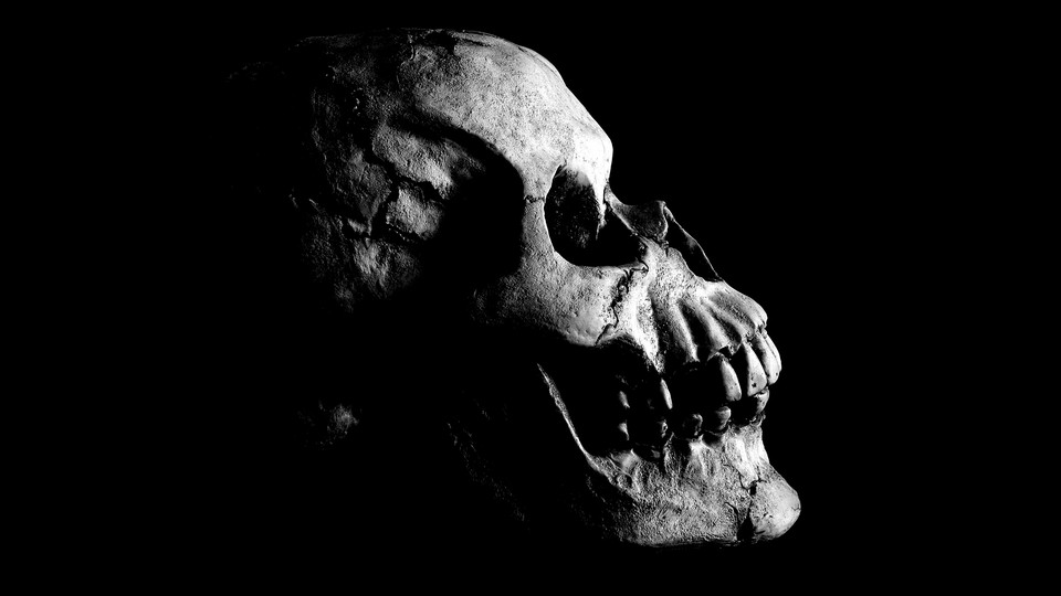 Black and white photograph of a skull