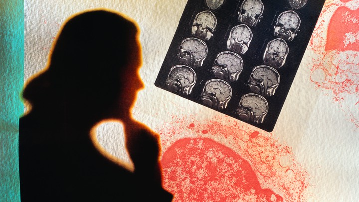 Silhouette of a doctor looking at an MRI scan