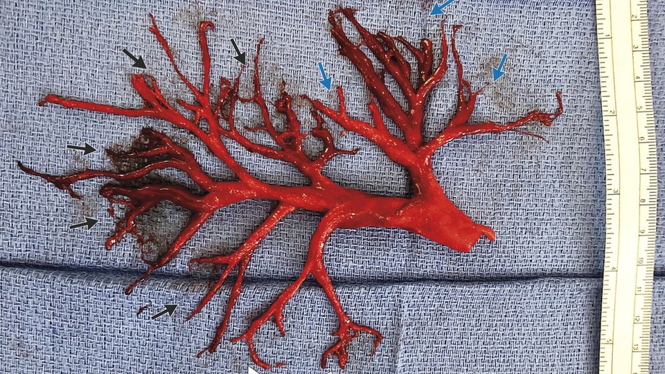 A blood-clot cast of the right bronchial tree