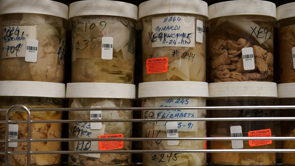 Human brains stored in jars filled with formaldehyde on shelves