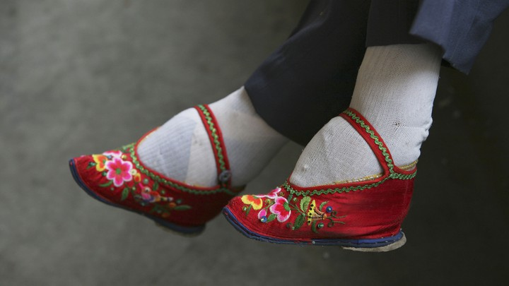Feet distorted by foot-binding