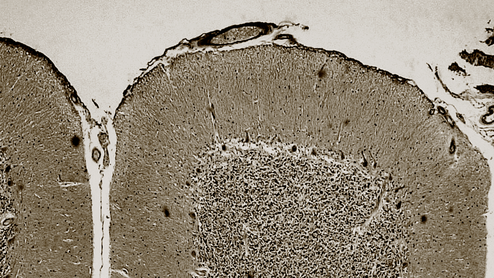 An image of the cerebellum