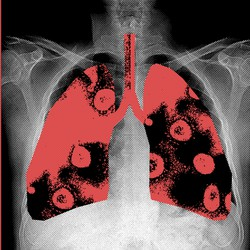 Chest X-ray with lungs highlighted
