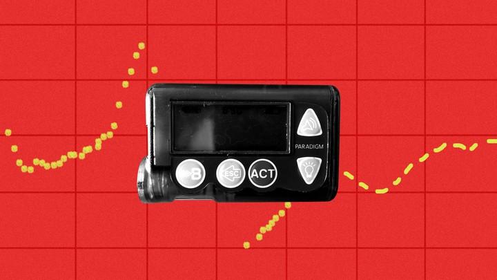 A Medtronic insulin pump