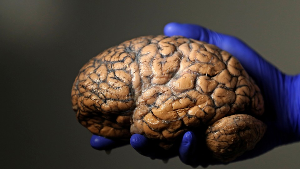 A gloved hand holds a human brain